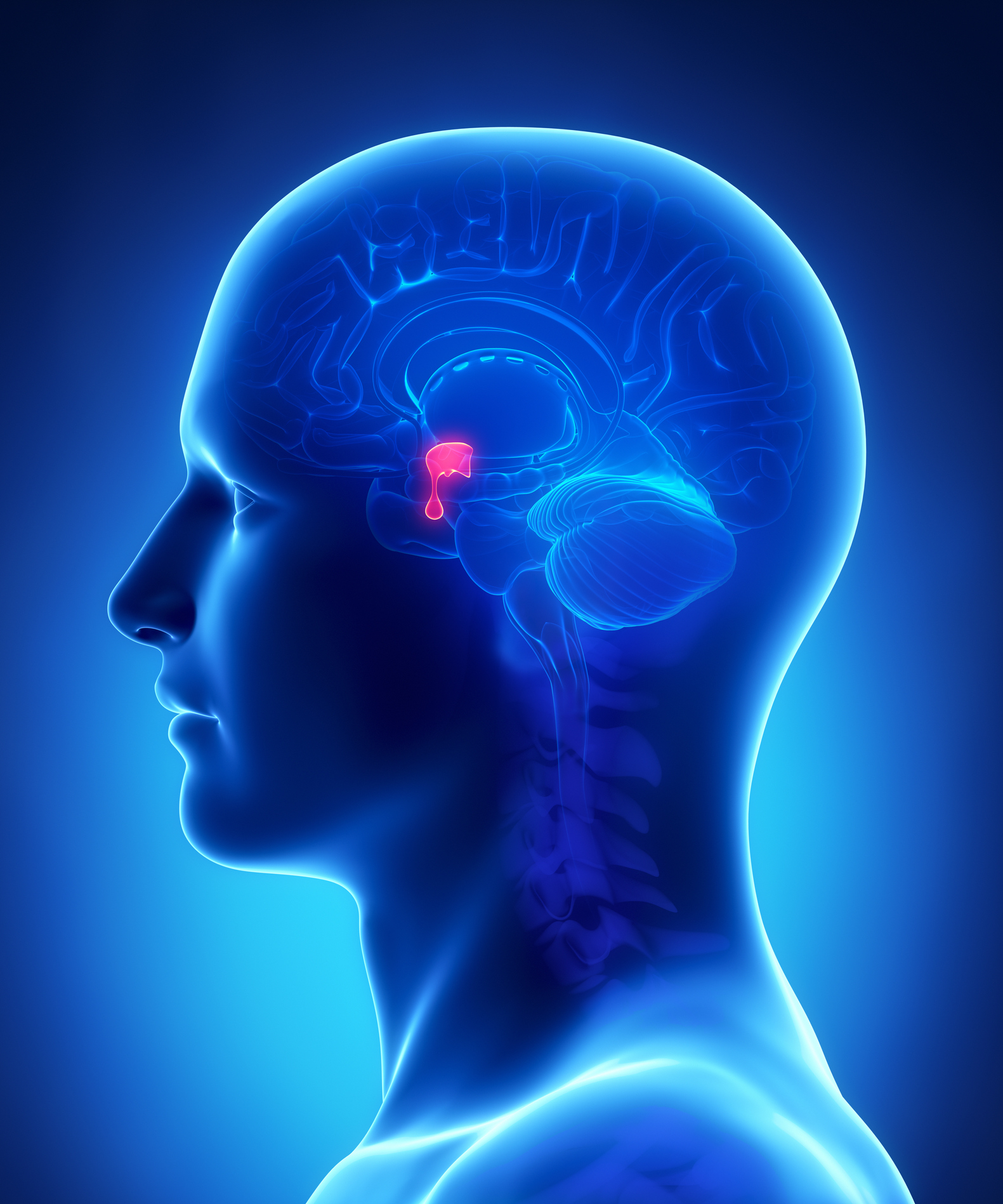 what is acromegaly pituitary tumor